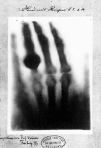the hand of Frau Röntgen